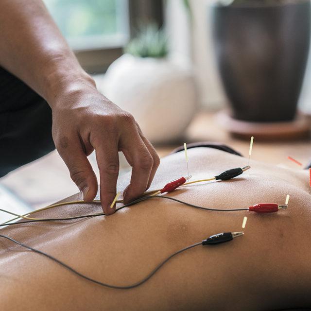 Acupuncture japonaise